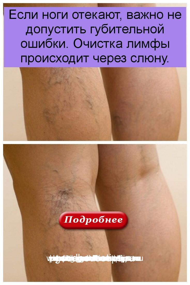 Если ноги отекают, важно не допустить губительной ошибки. Очистка лимфы происходит через слюну 4