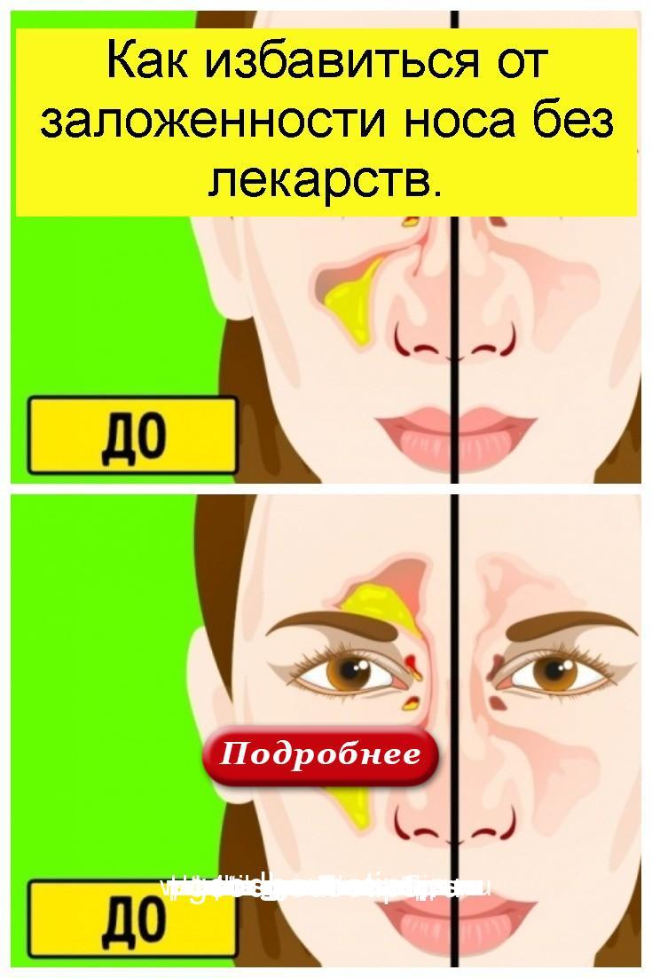 Как избавиться от заложенности носа без лекарств 4