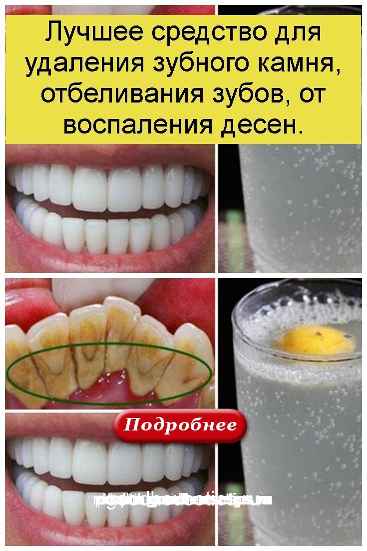 Лучшее средство для удаления зубного камня, отбеливания зубов, от воспаления десен 4