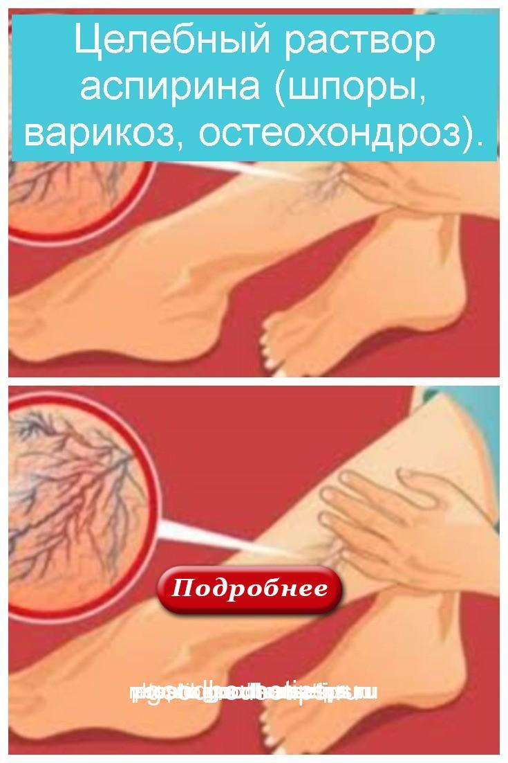 Целебный раствор аспирина (шпоры, варикоз, остеохондроз) 4