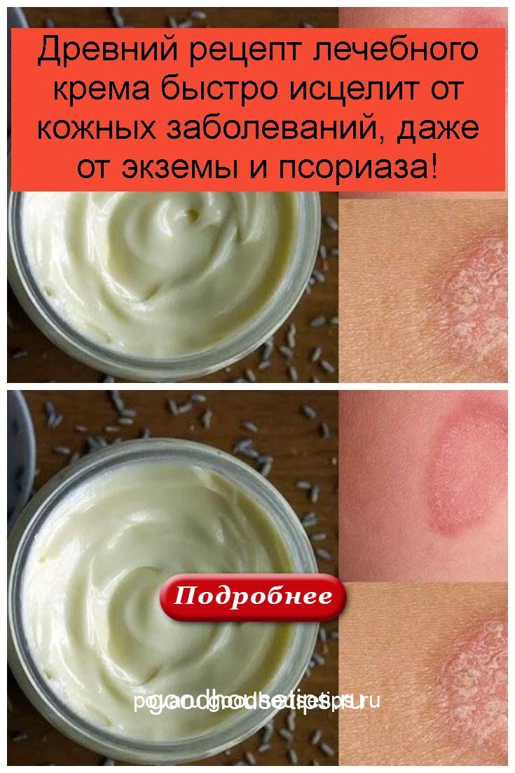 Древний рецепт лечебного крема быстро исцелит от кожных заболеваний, даже от экземы и псориаза 4