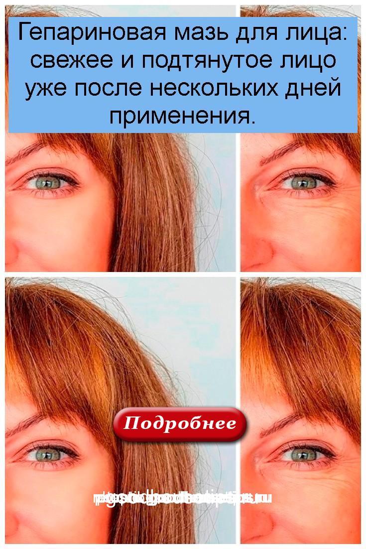 Гепариновая мазь для лица: свежее и подтянутое лицо уже после нескольких дней применения 4