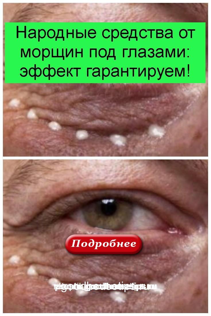 Народные средства от морщин под глазами: эффект гарантируем 4