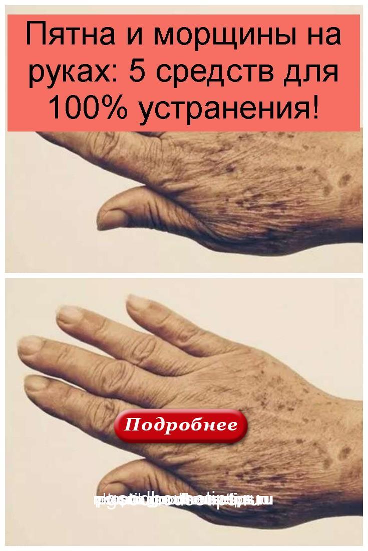 Пятна и морщины на руках: 5 средств для 100% устранения 4