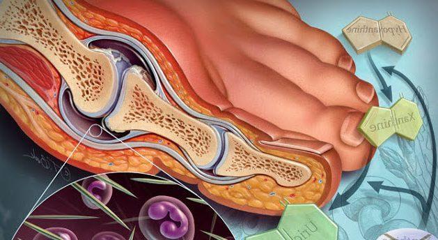 content_gouty_arthritis_medical_illustration_art-e1553285678242