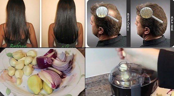how-to-get-long-hair-super-fast-natural-home-remedy-1