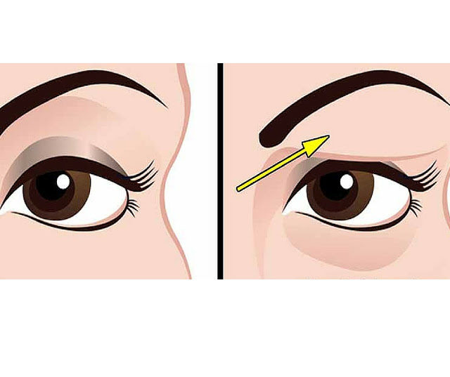 how-to-treat-droopy-eyelids-naturally-the-results-are-amazing-1