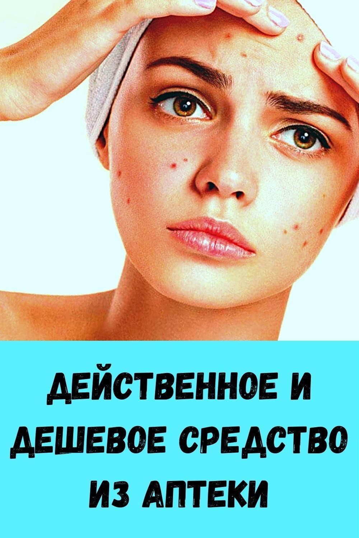 izbavtes-ot-mochevoy-kisloty-i-vylechite-podagru-s-pomoschyu-10-naturalnyh-sredstv-2-2