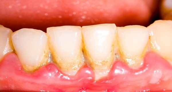 take-one-tablespoon-every-day-and-save-your-teeth-remove-plaque-in-a-very-simple-and-natural-way-1