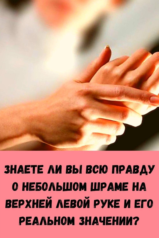 znaete-li-vy-vsyu-pravdu-o-nebolshom-shrame-na-verhney-levoy-ruke-i-ego-realnom-znachenii_
